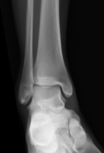 F_ANKLE_20180307_183416_edited