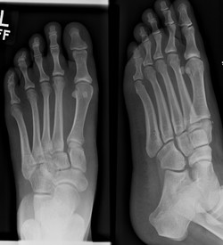 Twisted left ankle getting out of bed two week sago tender dorsum 25 f lisfranc_edited