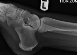 Anter process calcaneus fracture_edited