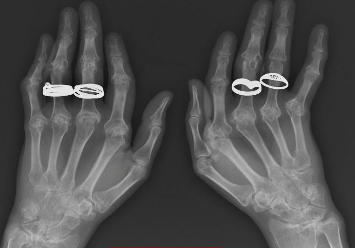 Psoriatic arthritis_edited