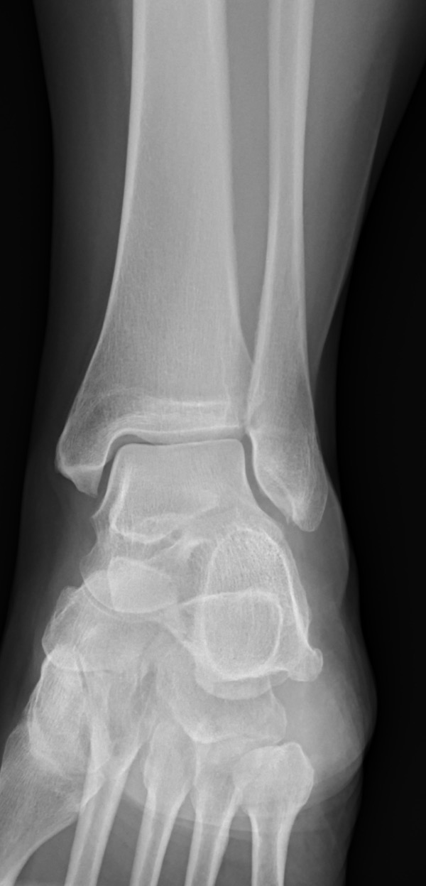 ANKLE_20160628_105528_edited