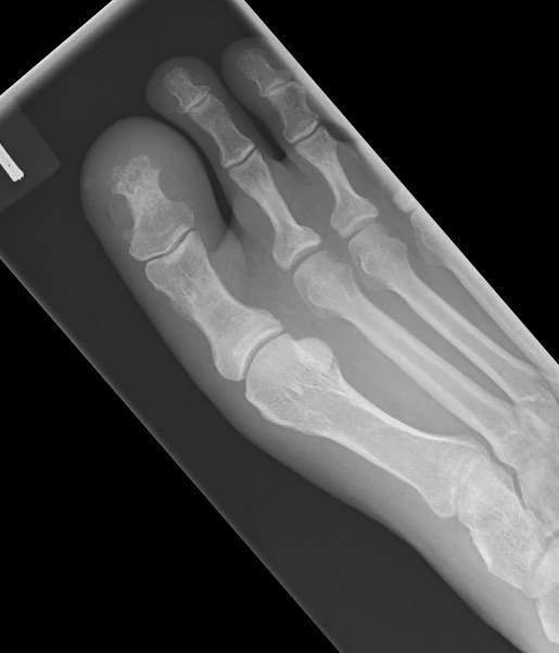 Great toe osteomyelitis_edited