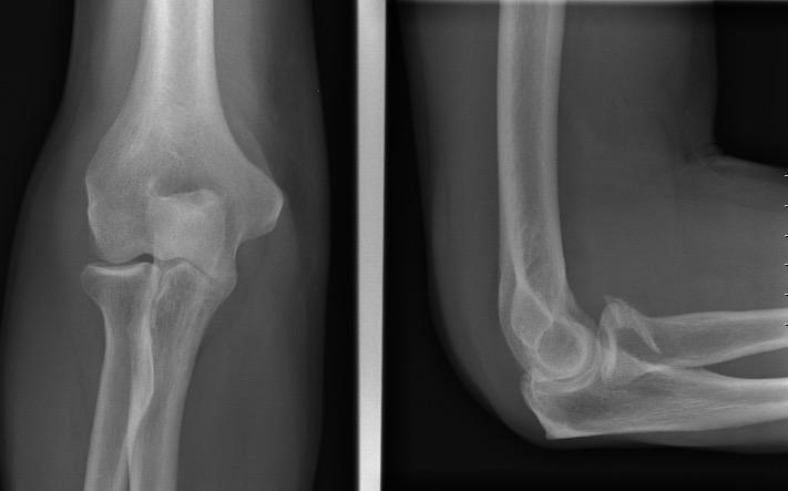 Coronoid fracture type II_edited
