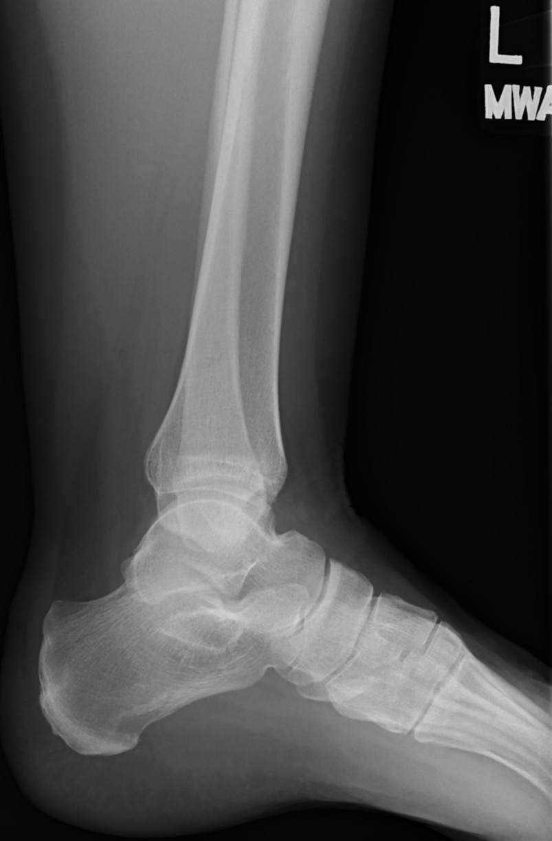 F_ANKLE_20160628_105546_edited