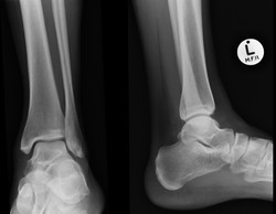 F_ANKLE_20160113_182639_edited