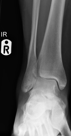 F_ANKLE_20160202_102825_edited