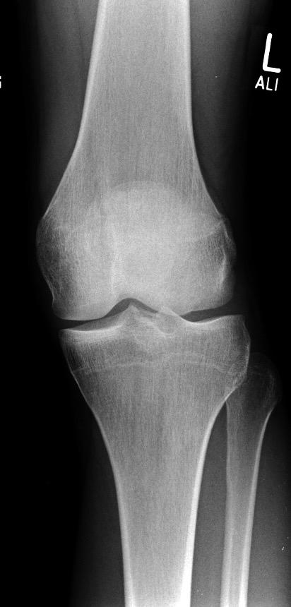 patella fracture_edited