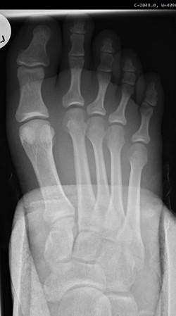 5th MT fracture_edited