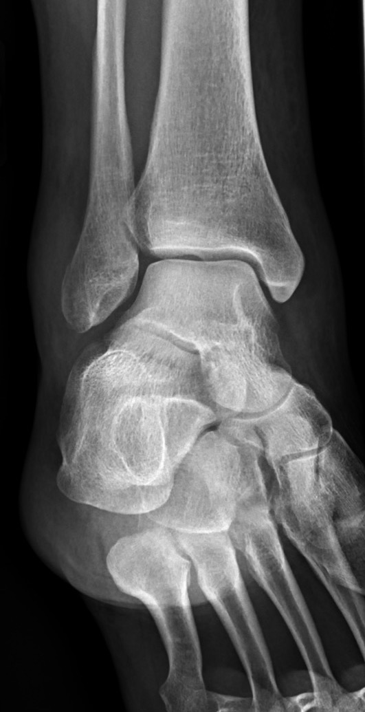 Lateral mal fracture_edited_edited