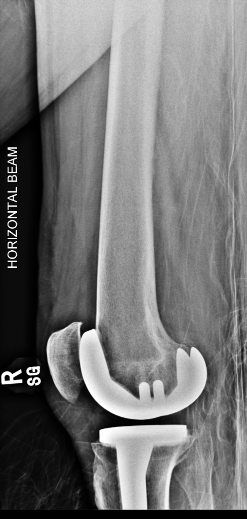 M_FEMUR_20160309_161510_edited