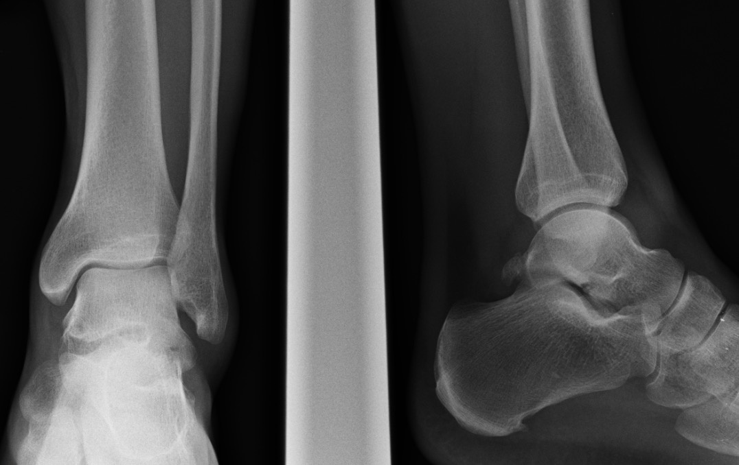 Lat process fracture_edited