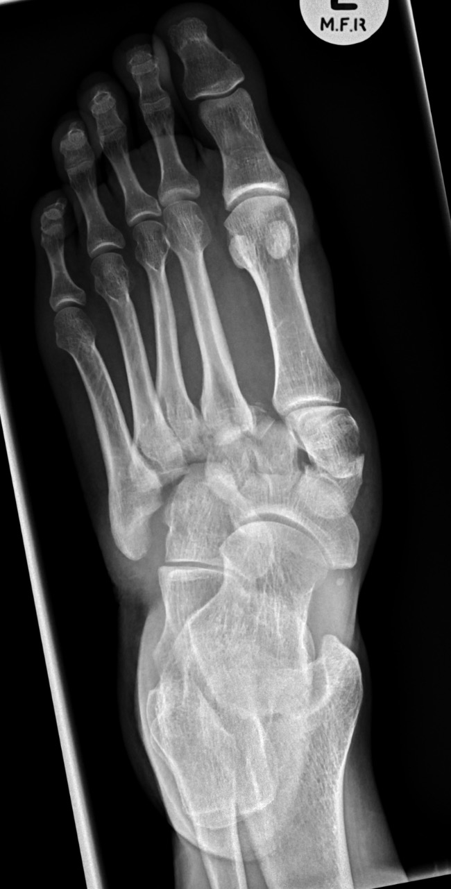 Lisfranc injury_edited