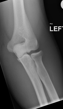 Tear of teh radial collateral ligament and abnormal widening_edited