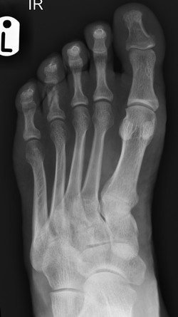 Non-united fracture 4th phalange_edited