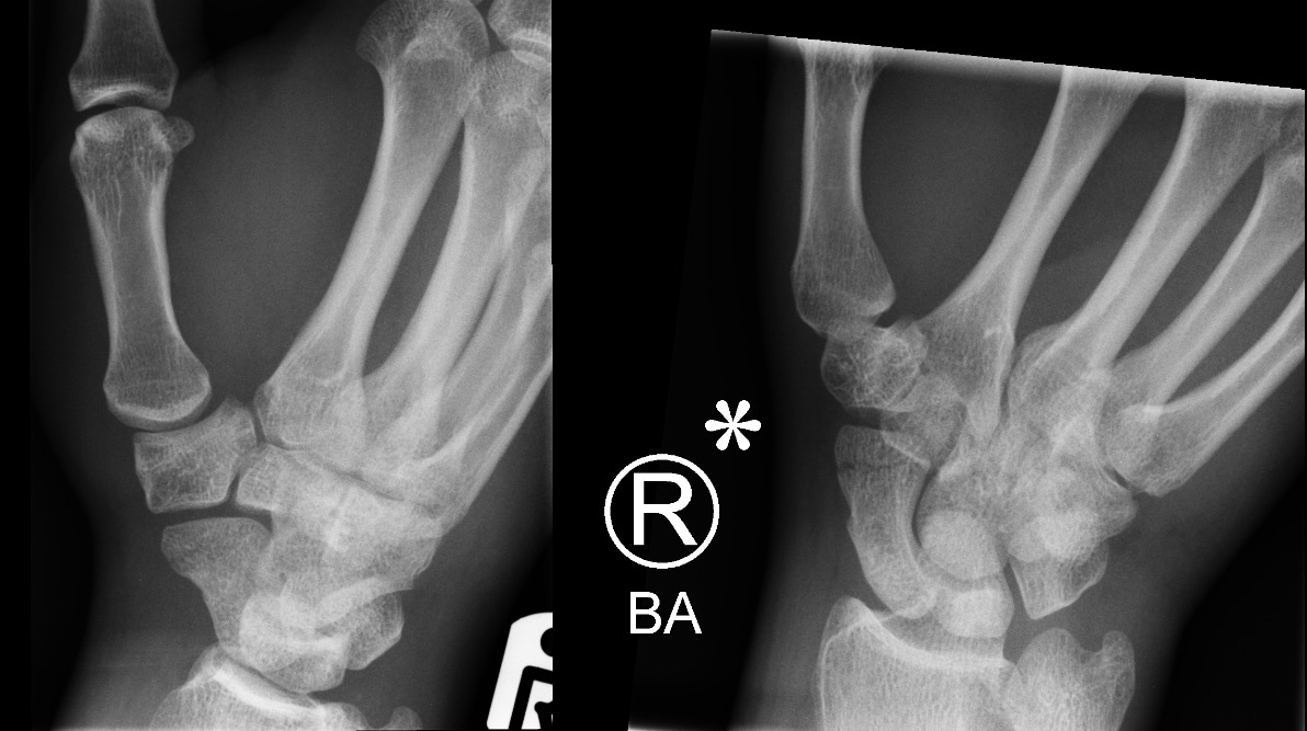 Scaphoid fracture_edited
