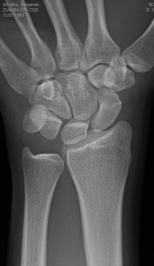 Fracture proximal scaphoid pole palin film CT quiz_edited