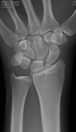 Fracture proximal scaphoid pole palin film CT quiz_edited