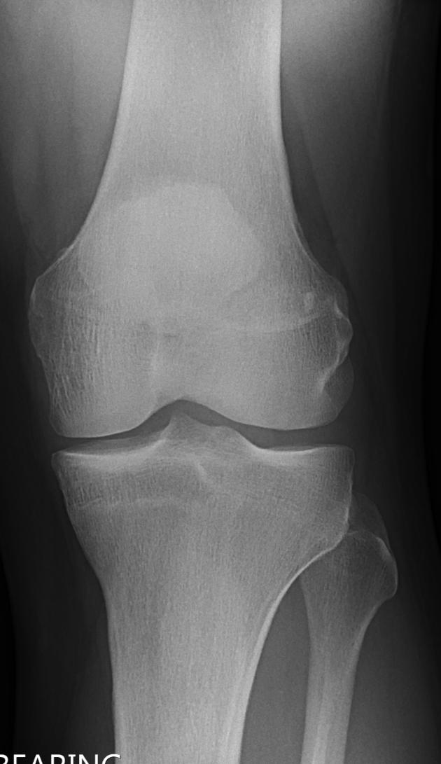 Normal AP knee_edited