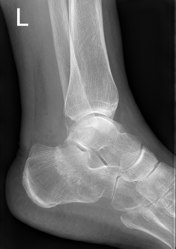 Stress fracture of calcaneum_edited