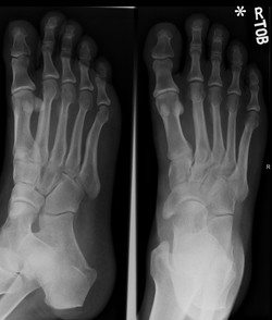 Stress fracture1_edited