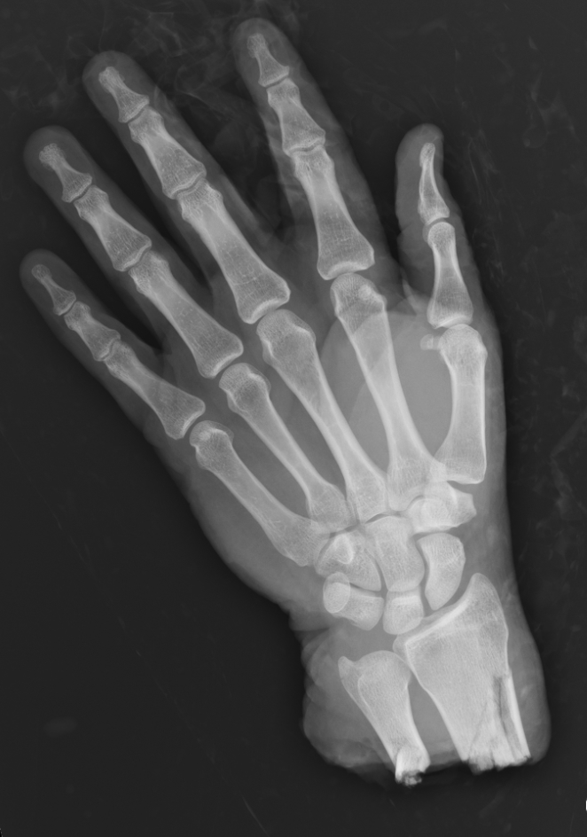 Amputated hand_edited