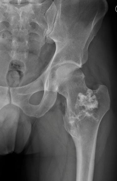 Osteochondroma of the femur_edited