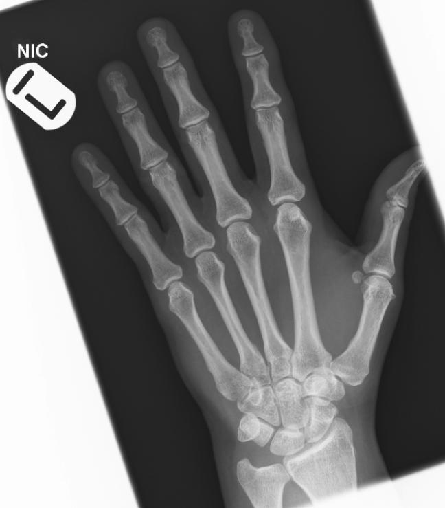 Normal hand AP_edited