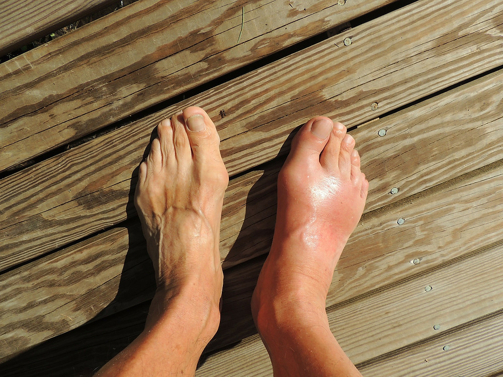 acute gout attack