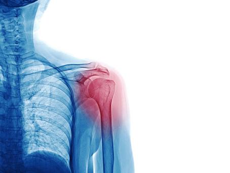 颈肩综合症八种证型的针灸疗法