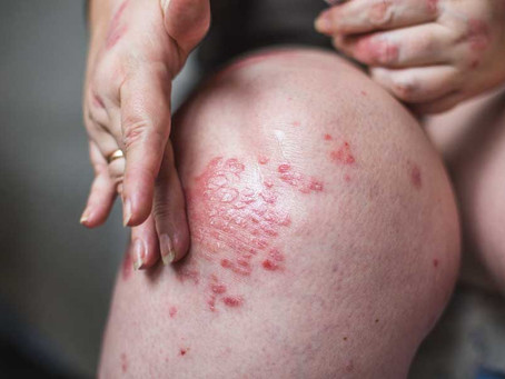 Eczema & Topical Steroid Withdrawal – How Does TCM Help?