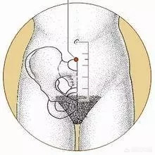 气海穴:位于腹正中线脐下1.5寸