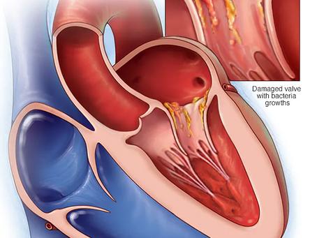 #CardioDato: Endocarditis Infecciosa