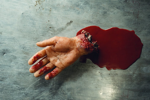 Bleeder Male Hand