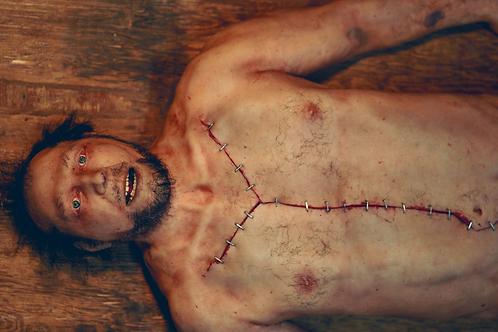 Autopsy Male Body
