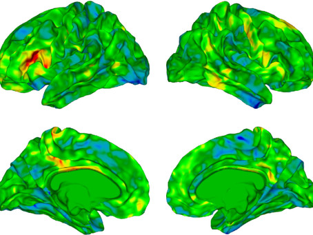 Autistic people with rare mutation may have unique brain anatomy