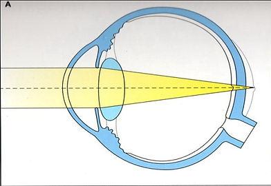 μάτι με υπερμετρωπία