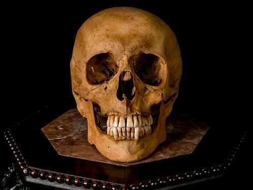 Human Skull #8322