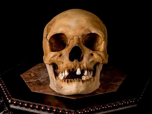 Human Skull #8483