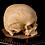 Thumbnail: Human Skull #7458