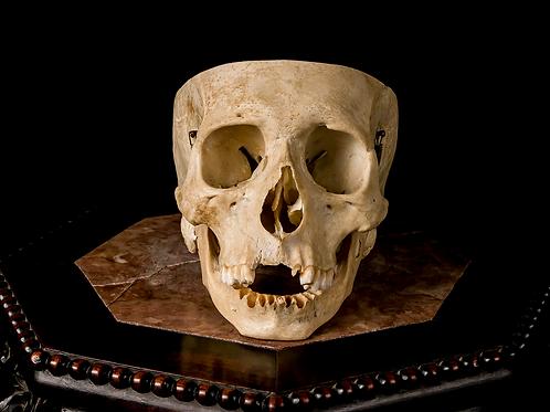 Human Skull #7519