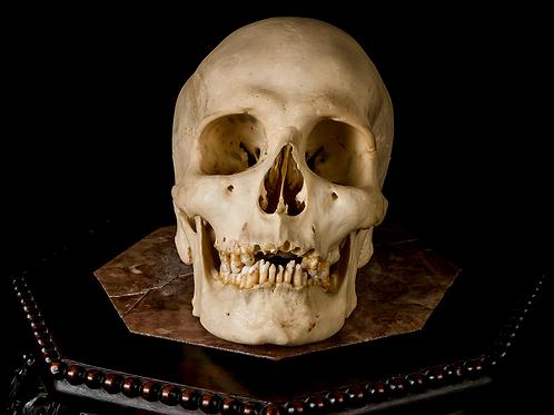 Human Skull #8445