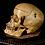 Thumbnail: Human Skull #T449 - Synostotic Posterior Plagiocephaly