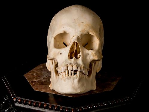 Human Skull #8337
