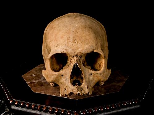 Human Skull #8490