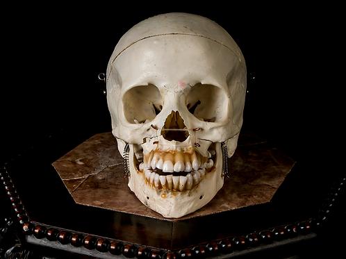 Human Skull #9473, Removable Maxilla