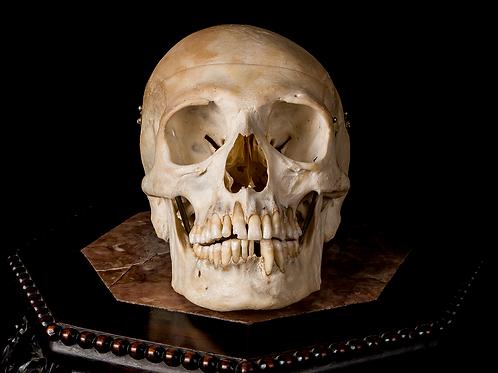 Human Skull #9346, Plagiocephaly and Wormian Bones