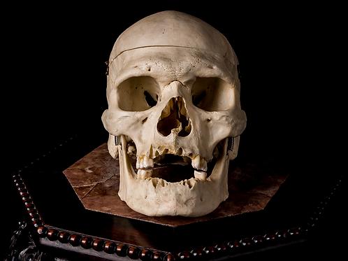 Human Skull #8392
