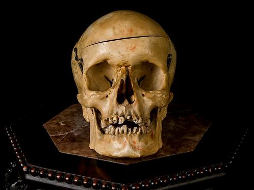 Human Skull #T449 - Synostotic Posterior Plagiocephaly