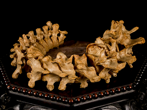 Human Spine (Partial), 19th-Century
