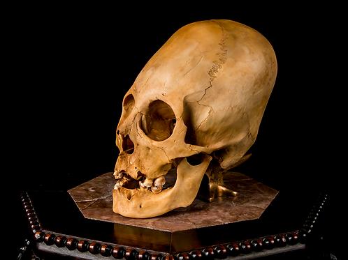 Elongated Skull - Child